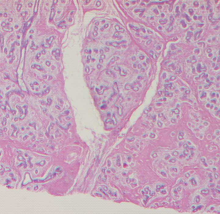 Fibroadenoma of the Breast